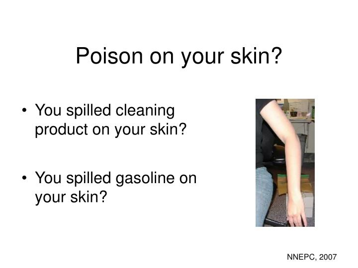 Poison on your skin?