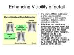 enhancing visibility of detail