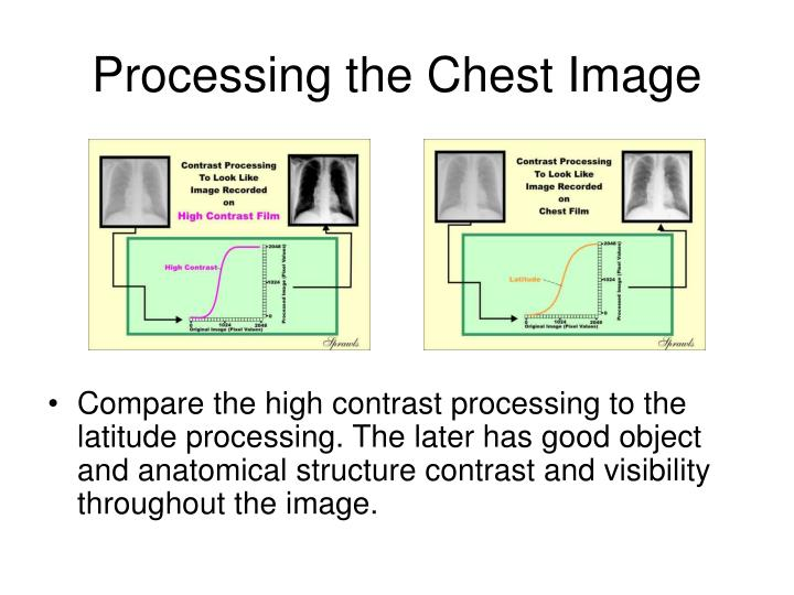 Processing the Chest Image