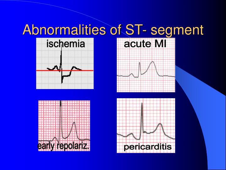 Abnormalities of ST- segment