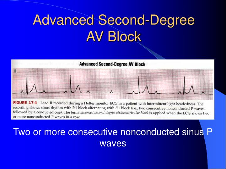Advanced Second-Degree AV Block