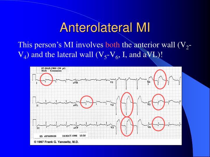 Anterolateral MI