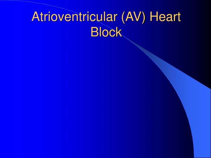 Atrioventricular (AV) Heart Block