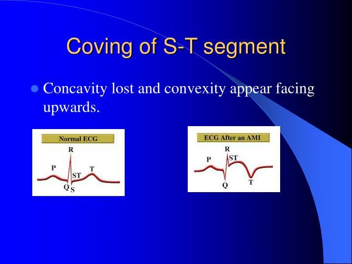 Coving of S-T segment