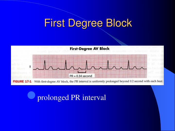 First Degree Block