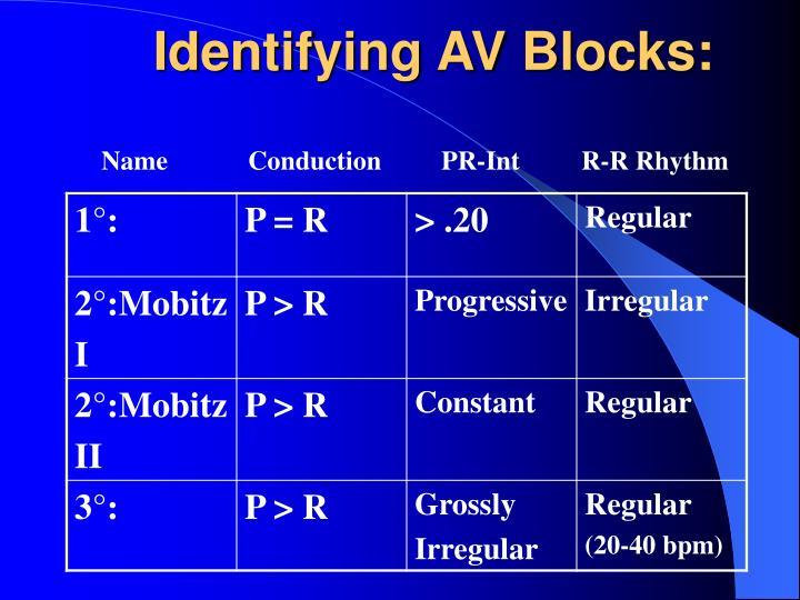 Identifying AV Blocks: