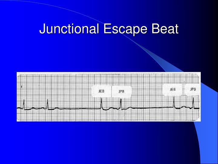 Junctional Escape Beat