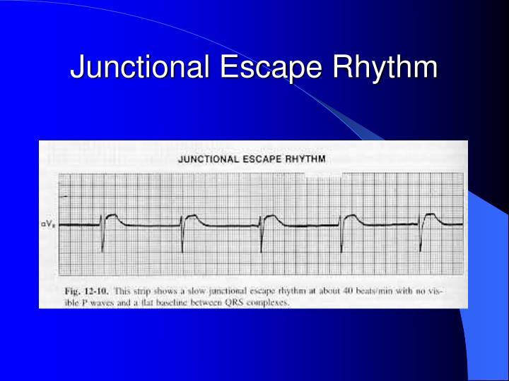 Junctional Escape Rhythm