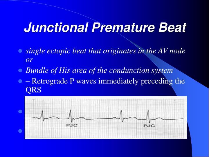Junctional Premature Beat