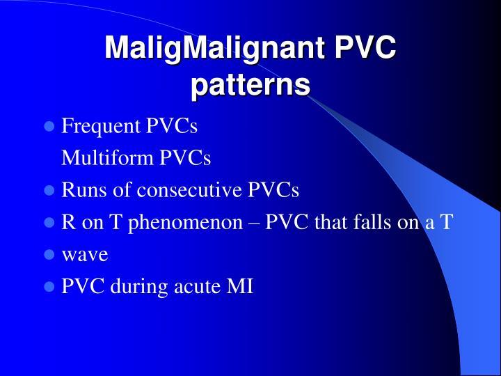 MaligMalignant PVC