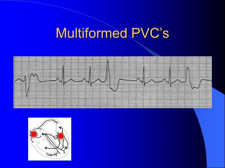 Multiformed PVC's