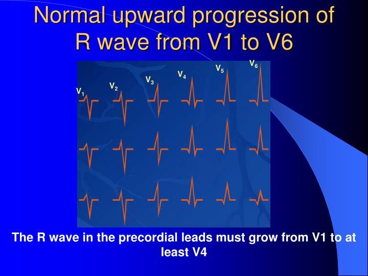 Normal upward progression of R wave from V1 to V6