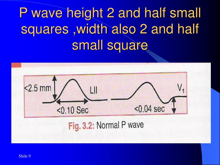 P wave height 2 and half small squares ,width also 2 and half small square