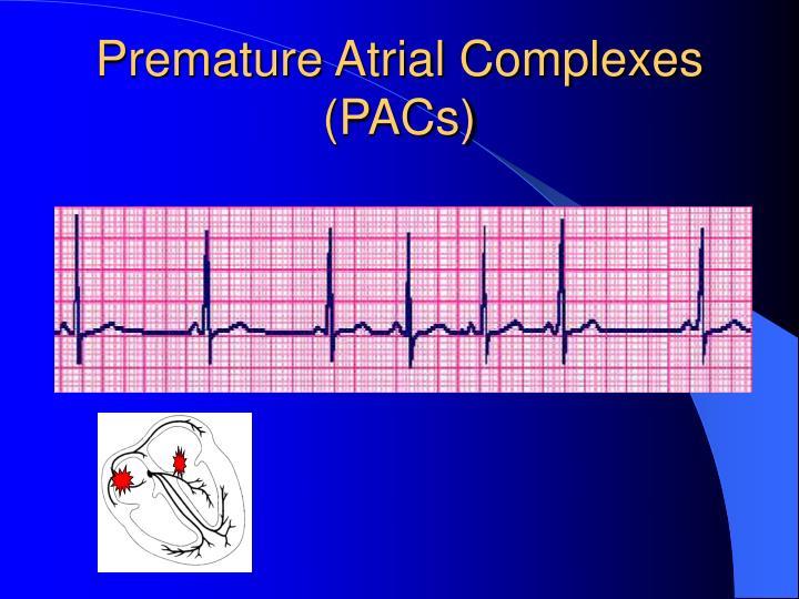 Premature Atrial Complexes (PACs)