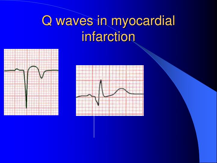 Q waves in myocardial infarction