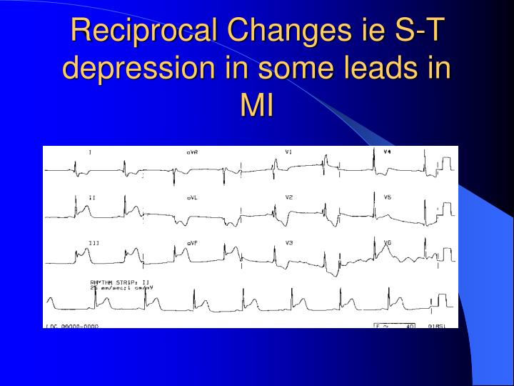 Reciprocal Changes ie S-T depression in some leads in MI