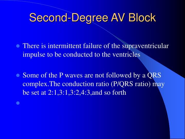 Second-Degree AV Block