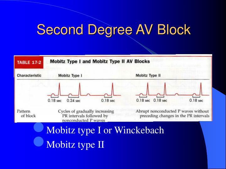 Second Degree AV Block