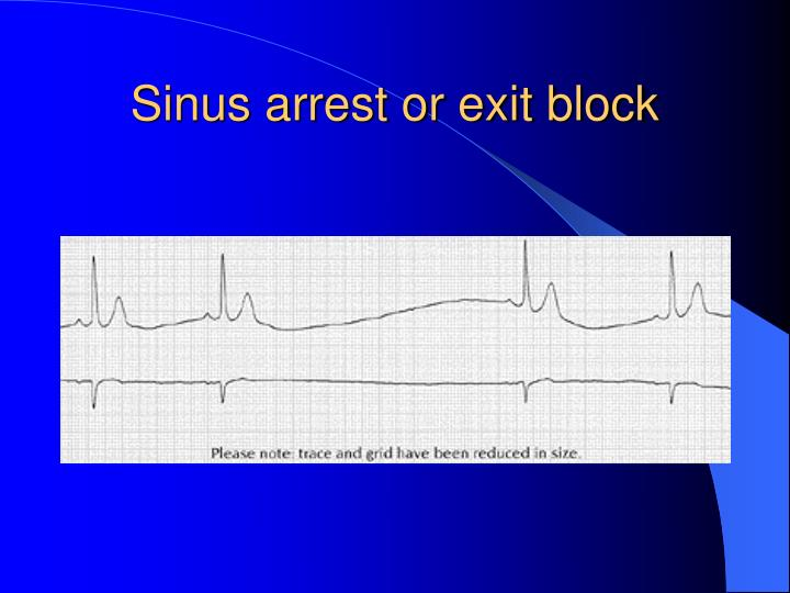 Sinus arrest or exit block