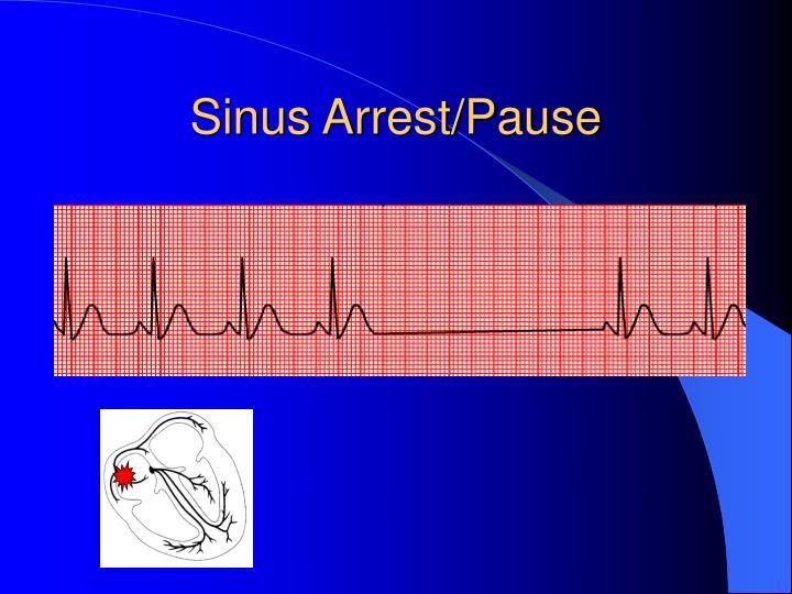 Sinus Arrest/Pause
