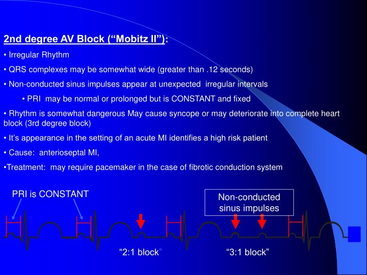 """2nd degree AV Block (""""Mobitz II"""")"""