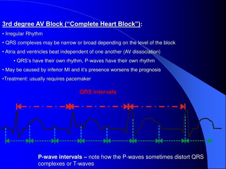 """3rd degree AV Block (""""Complete Heart Block"""")"""