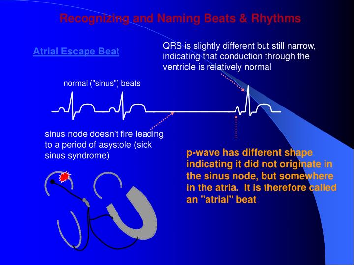 Recognizing and Naming Beats & Rhythms