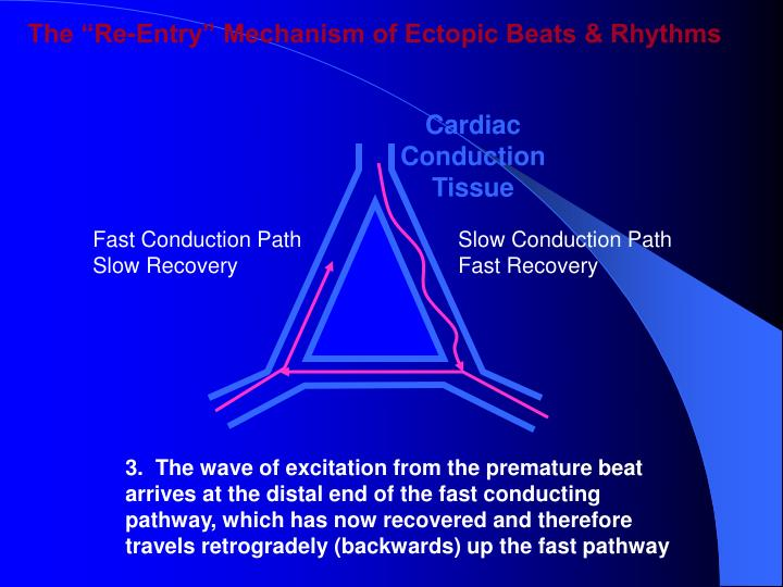 "The ""Re-Entry"" Mechanism of Ectopic Beats & Rhythms"