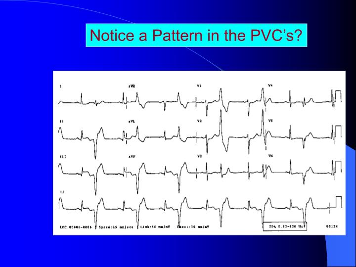 Notice a Pattern in the PVC's?