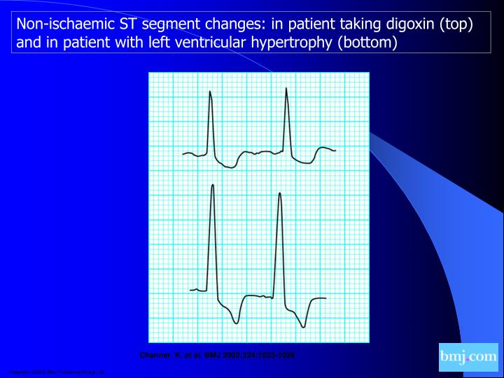 Non-ischaemic ST segment changes: in patient taking digoxin (top) and in patient with left ventricular hypertrophy (bottom)