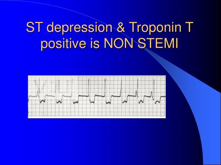 ST depression & Troponin T  positive is NON STEMI