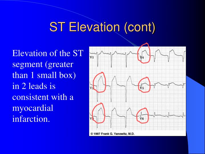ST Elevation (cont)