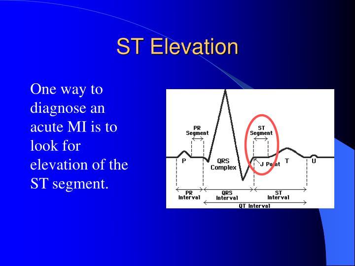 ST Elevation