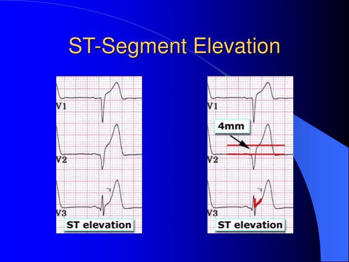 ST-Segment Elevation