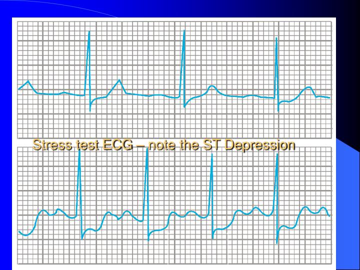 Stress test ECG – note the ST Depression