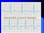 stress test ecg note the st depression