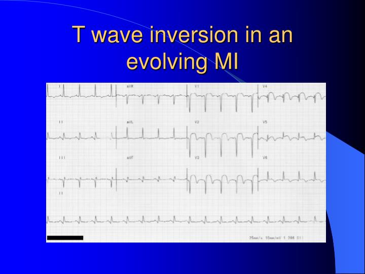 T wave inversion in an evolving MI