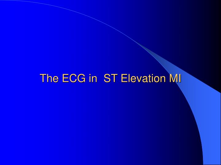 The ECG in  ST Elevation MI