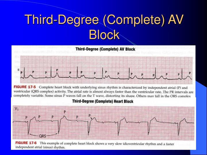 Third-Degree (Complete) AV Block