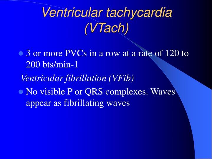 Ventricular tachycardia (VTach)