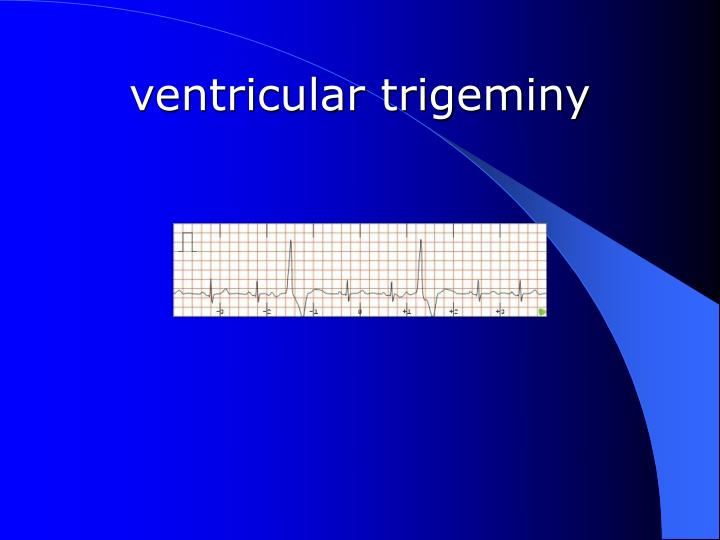 ventricular trigeminy