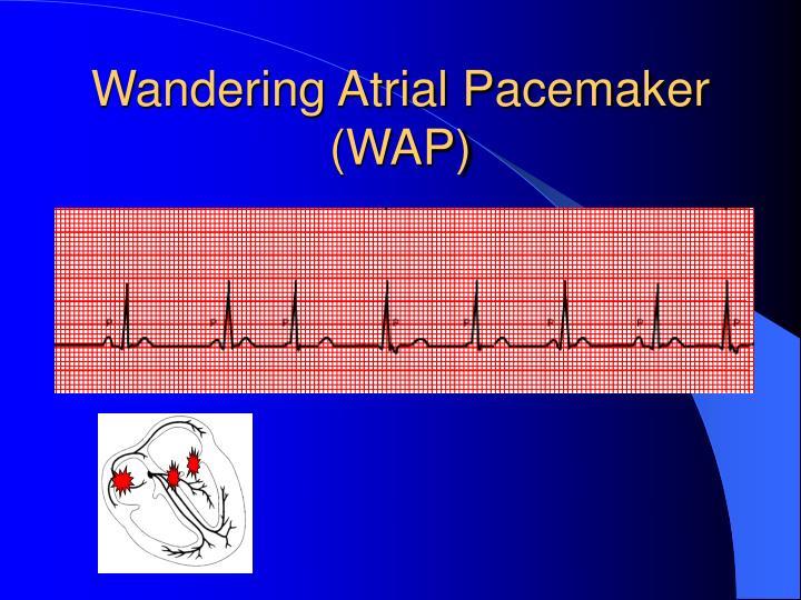 Wandering Atrial Pacemaker (WAP)