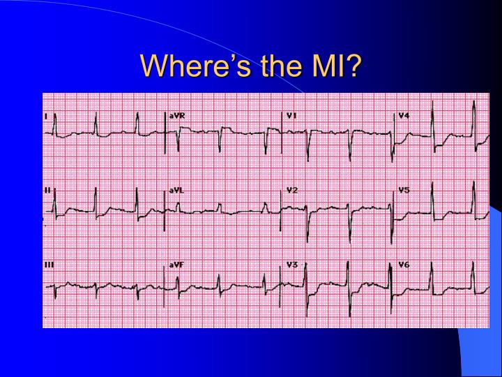 Where's the MI?
