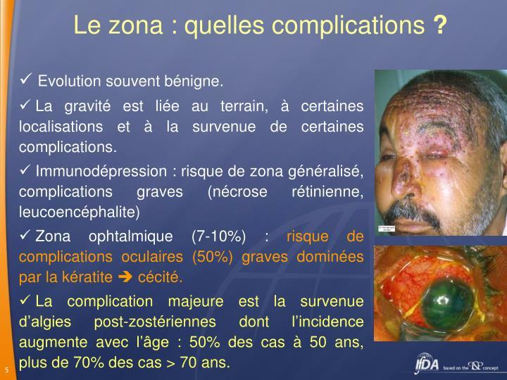 Le zona : quelles complications