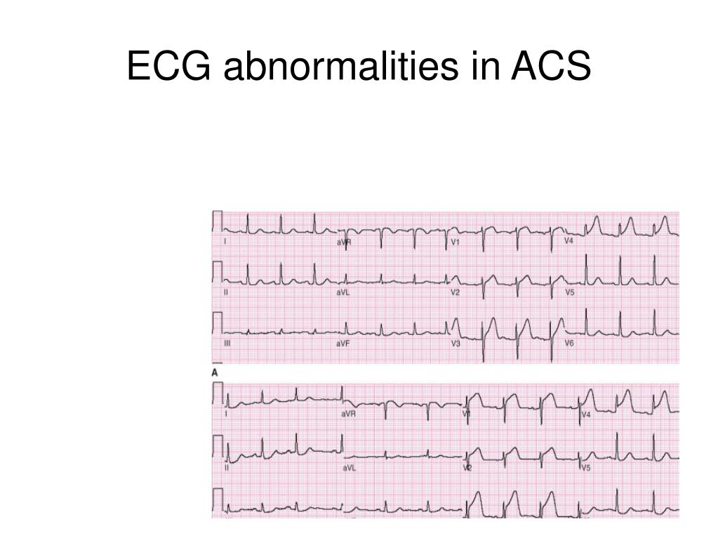 ECG abnormalities in ACS