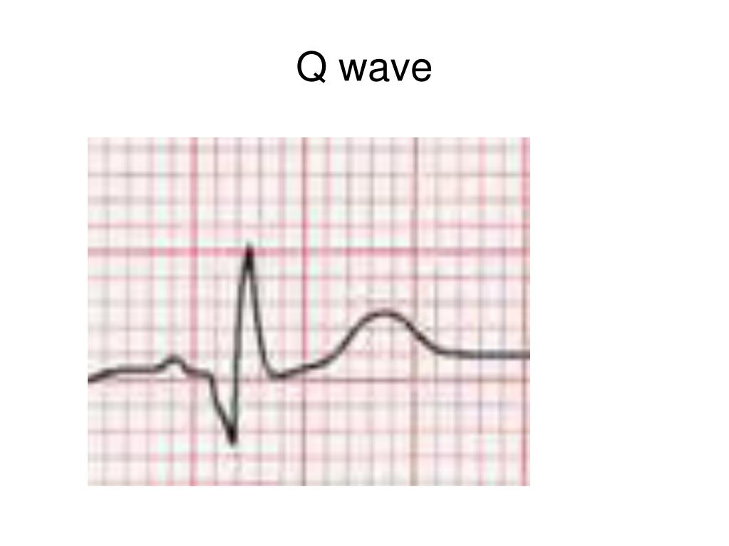 Q wave