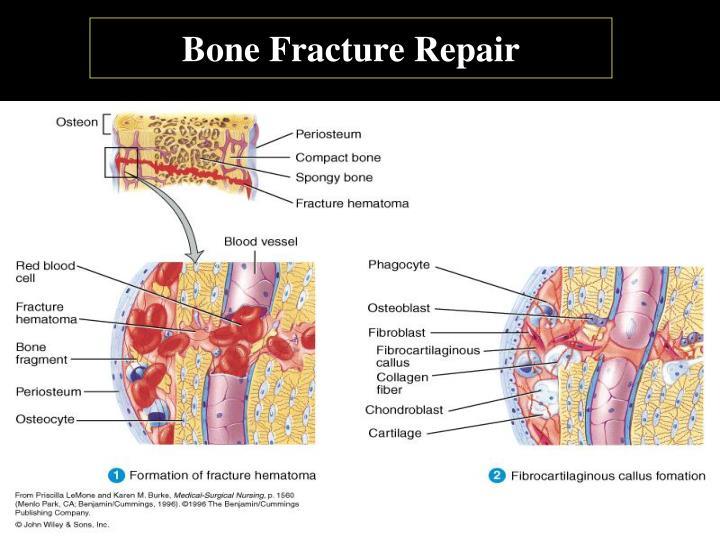 Bone Fracture Repair