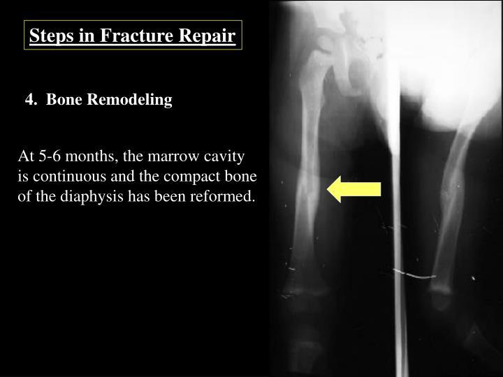 Steps in Fracture Repair
