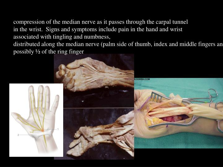 compression of the median nerve as it passes through the carpal tunnel