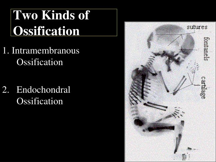 Two Kinds of Ossification